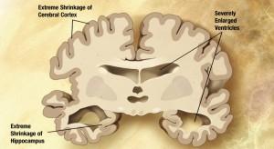 Alzheimer's_disease_brain_severe_750x410